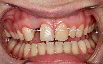 Implant and Veneers