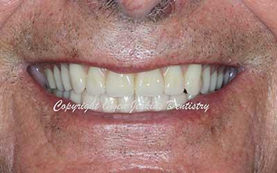 Lower Implant Denture