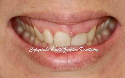 Orthodontics, Gum Surgery for Crown Lenghthening, Implant and Crowns