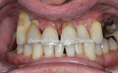 Upper Implant Denture