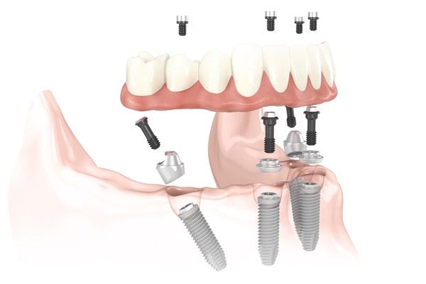 Sunshine Coast Dental Implant Centre - All-On-4