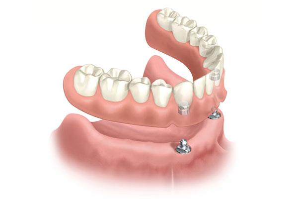 Sunshine Coast Dental Implant Centre - Click on Denture