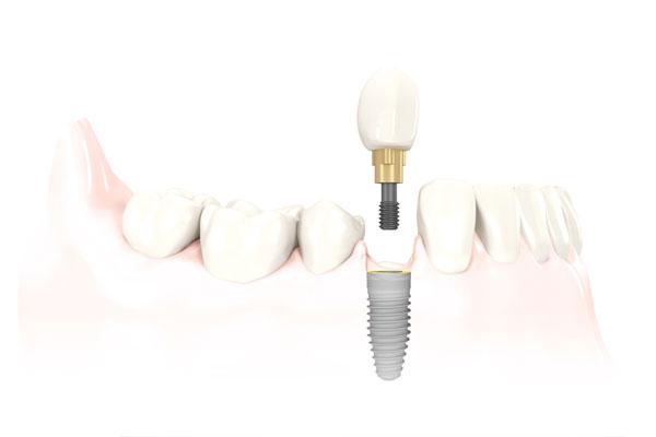 Sunshine Coast Dental Implant Centre